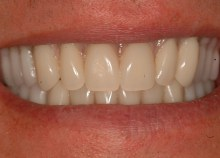 Full Upper and Lower Titanium Acrylic Bridges on Implants